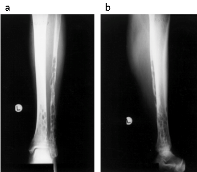 Anteroposterior and lateral radiographs of the tibia and fibula