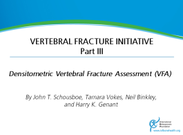 Vertebral Fracture Teaching Programme - Part3